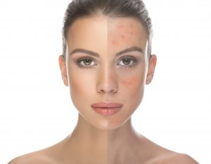rosacea-triggers-to-avoid